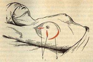 Мастит - одна из причин болезненных ощущений в молочных железах