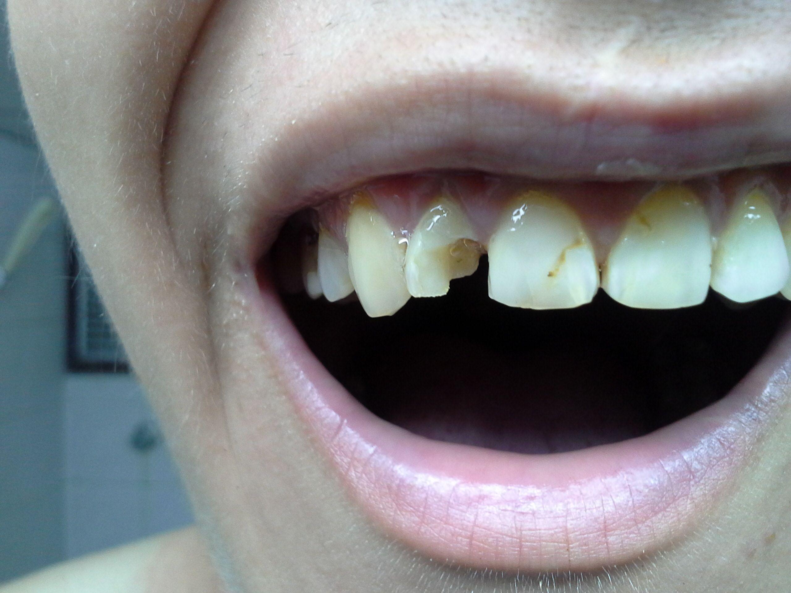 Как сделать зубы если их не осталось 835