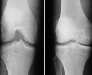 Артроз коленного сустава на снимке