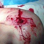 Пулевое ранение в плечо