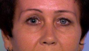 Сужение зрачка глаза человека