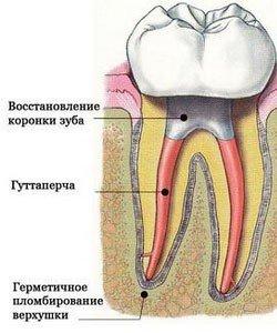 Зуб с залеченным обострением периодонтита