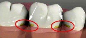 отстатки пищи между зубами