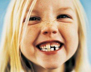 Неправильный рост постоянных зубов, нарушение прикуса у ребенка