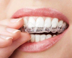 Силиконовые насадки на зубы