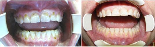 Сравнительное фото больных и здоровых зубов