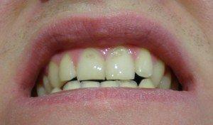 Мужские зубы с эрозией эмали
