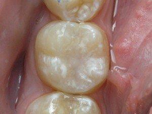 Запечатывание углубление зубов