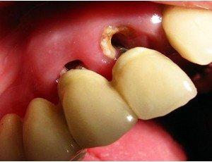 кариес зубного корня