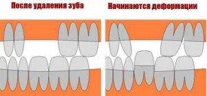 последствия удаления зуба