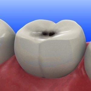 кариес на зубе