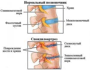 Иллюстрация повреждения при спондилоартрозе