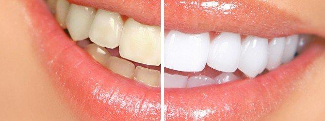 Женская улыбка, пример тетрациклиновых и здоровых зубов