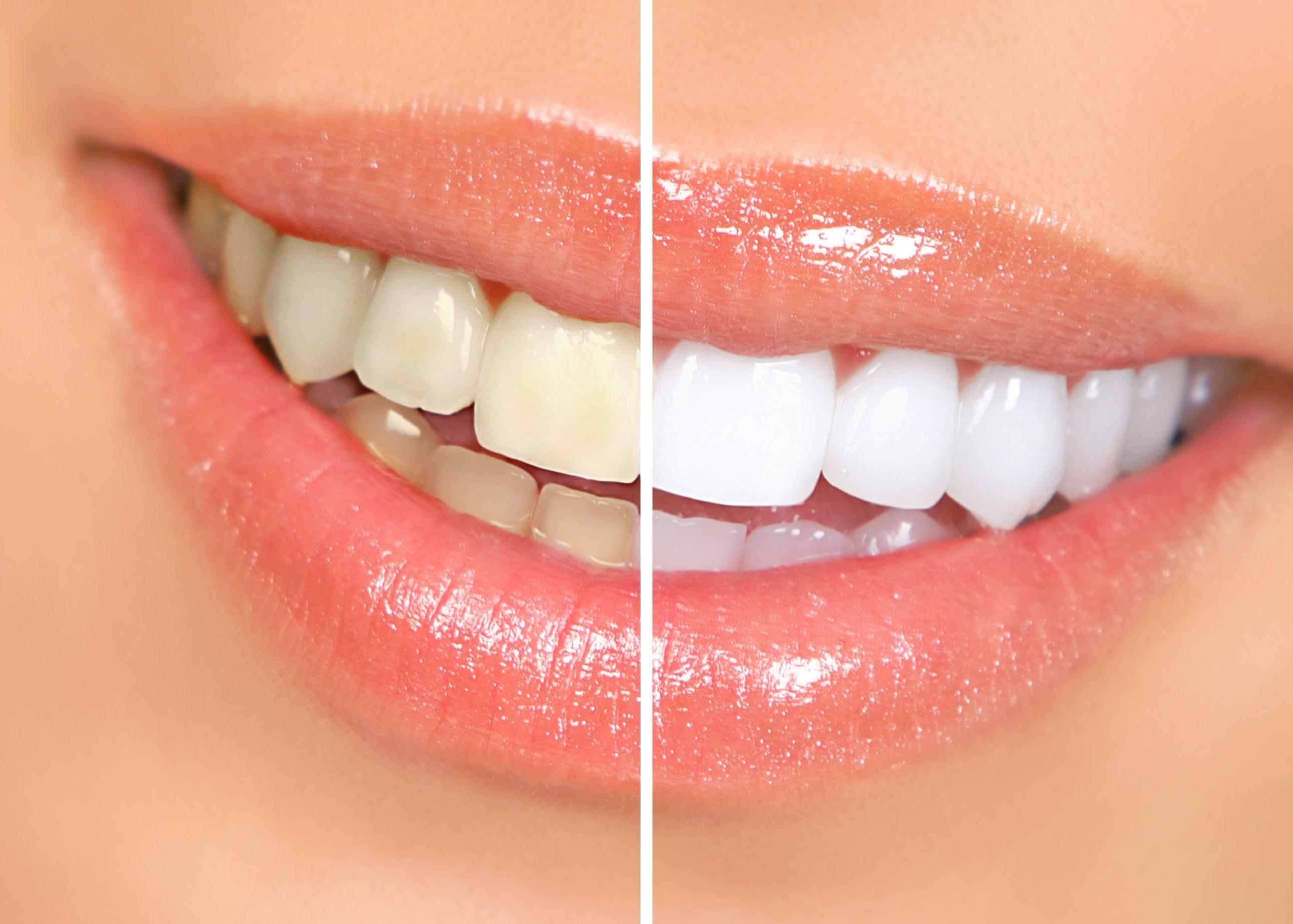 Тетрациклиновые зубы – как избавиться от этой проблемы?