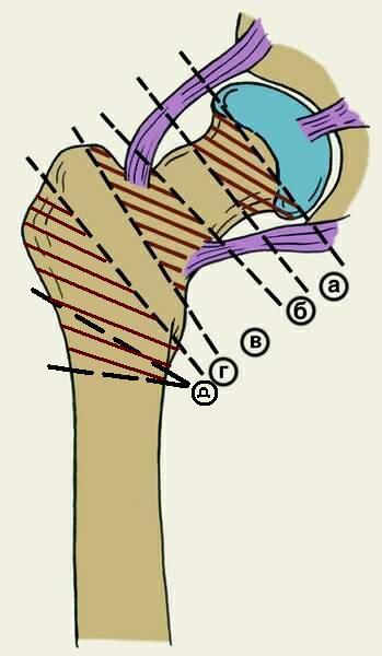 Схема возможных вариантов перелома шейки бедра
