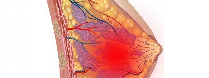Лечение связанное с болями в молочных железах