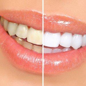 Почему появляется пародонтоз: популярные причины по опыту стоматолога