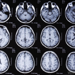 компьютерная томография мозга результаты