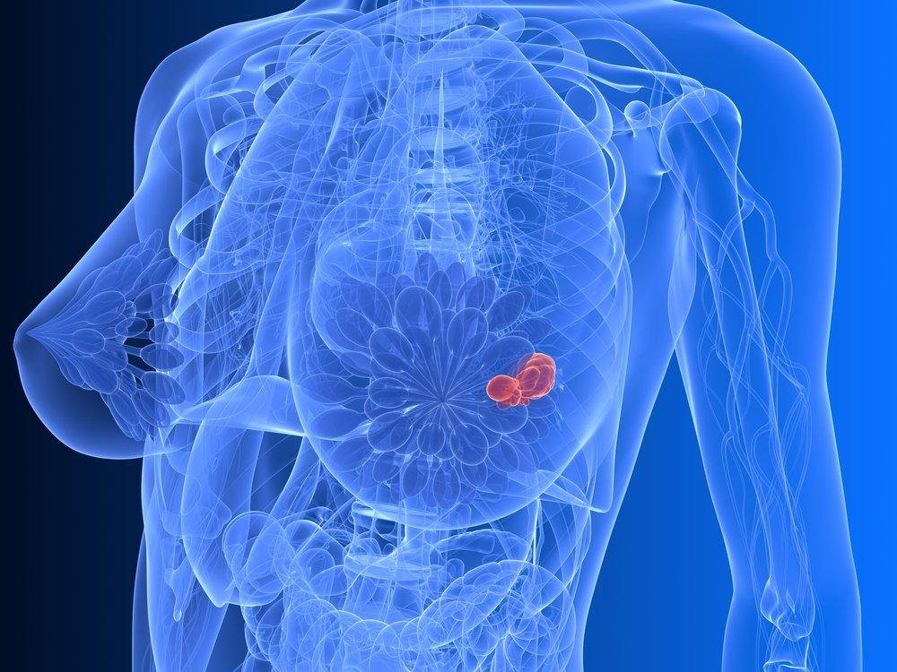 Способы диагностики болей в молочной железе