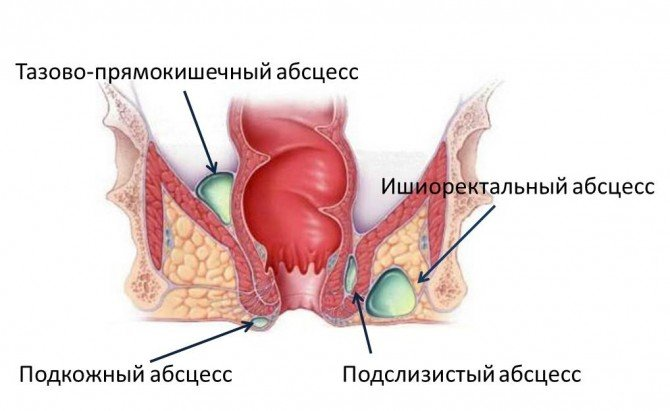 Локализация воспалений при парапроктите