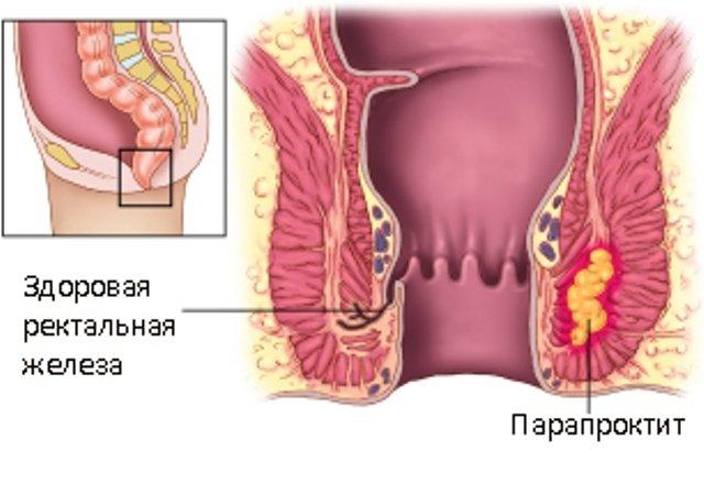 Схематическое изображение парапроктита