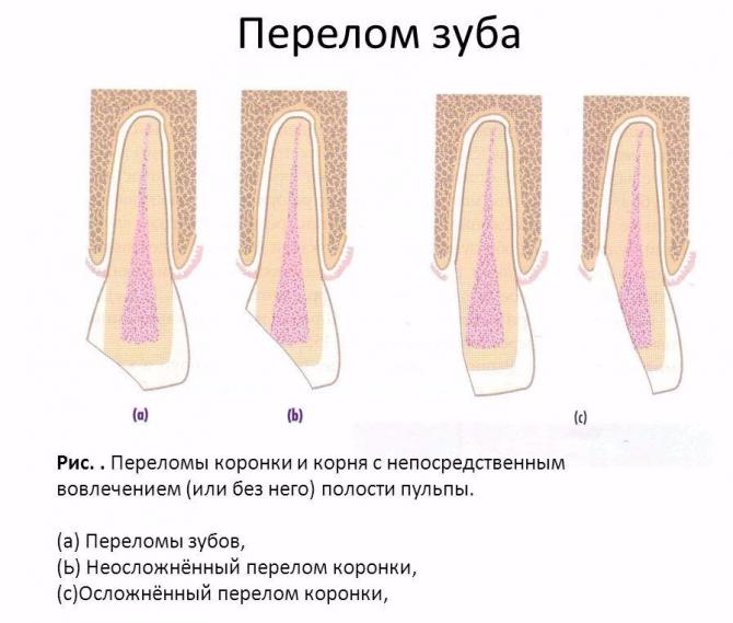 Виды переломов зуба