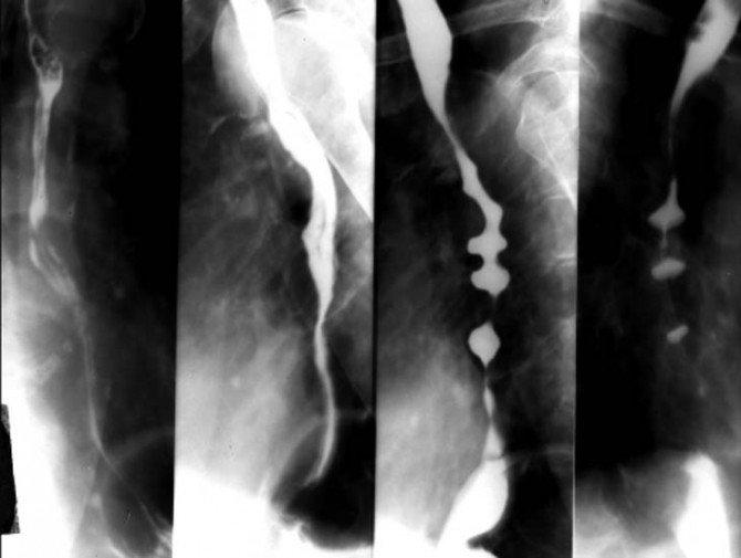 Рентгенограмма пищевода