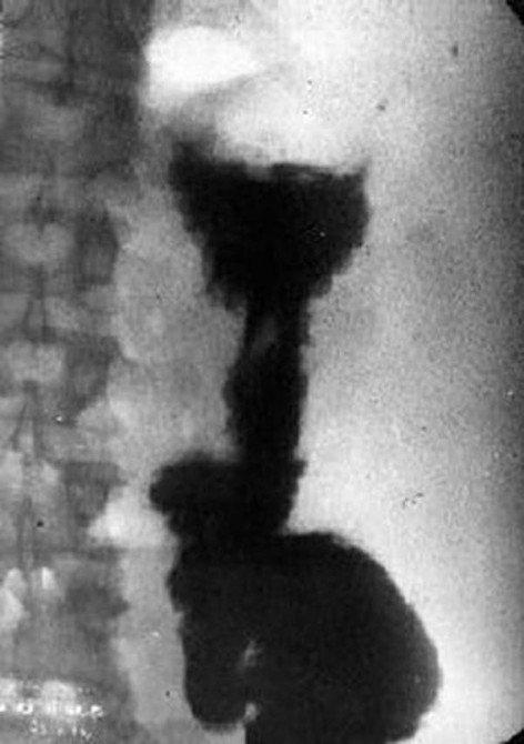 Рентгенограмма с контрастным барием