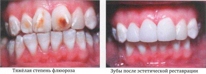 Результат лечения флюороза