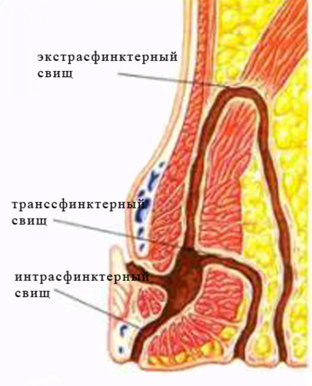 Кровь при дефекации у беременных женщин