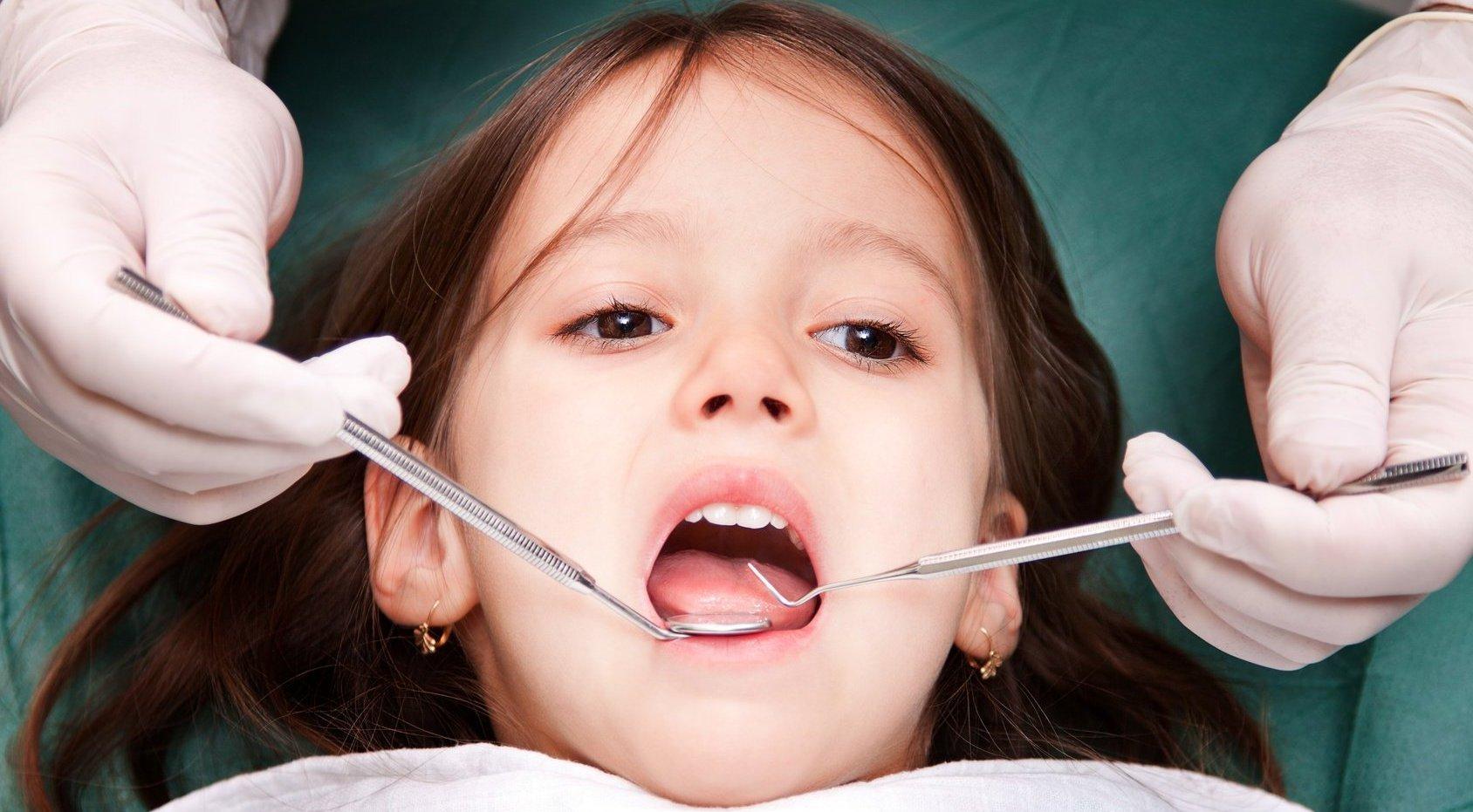 Все о гипоплазии эмали молочных и коренных зубов