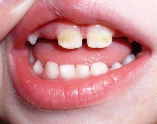 Серый налёт на зубах