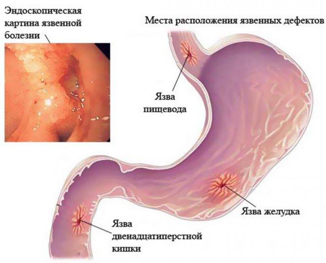 Язвенные поражения органов пищеварения