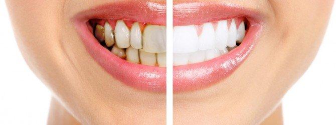 зубной налёт на зубах