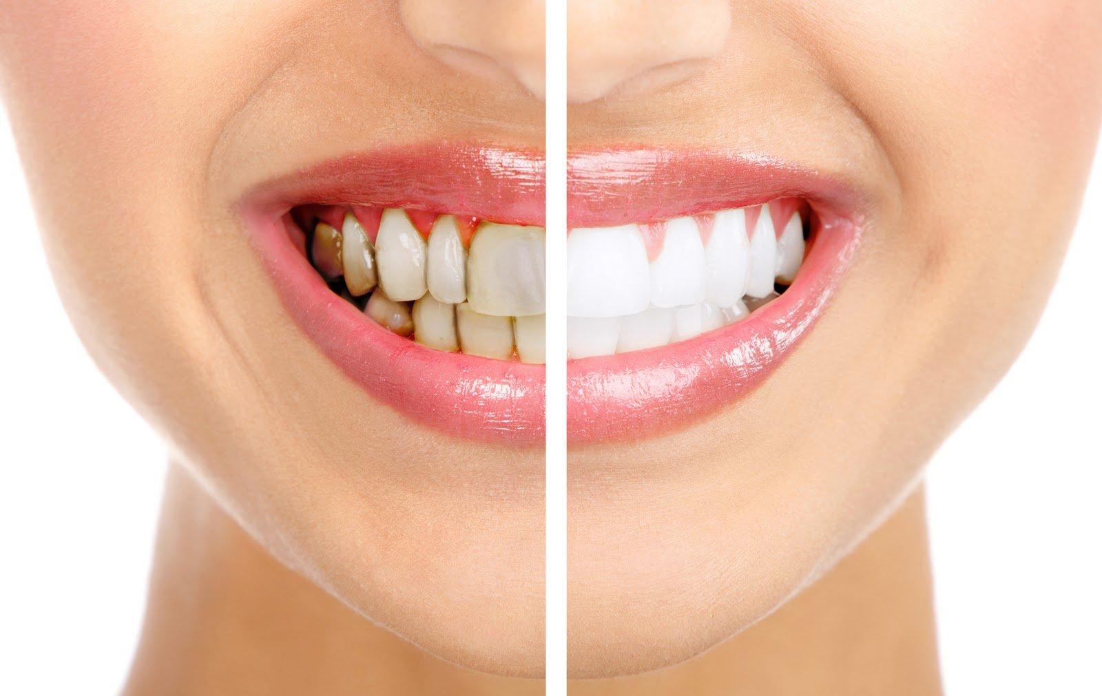 Пугающий чёрный налёт на зубах – что это такое, как с ним бороться?