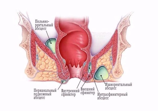 Воспаления в области прямой кишки