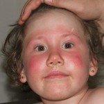 Аллергические покраснения