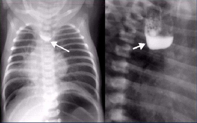 Атрезия пищевода — рентгеновский снимок