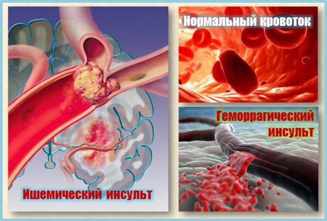 Проявленияишемического и геморрагического инсультов
