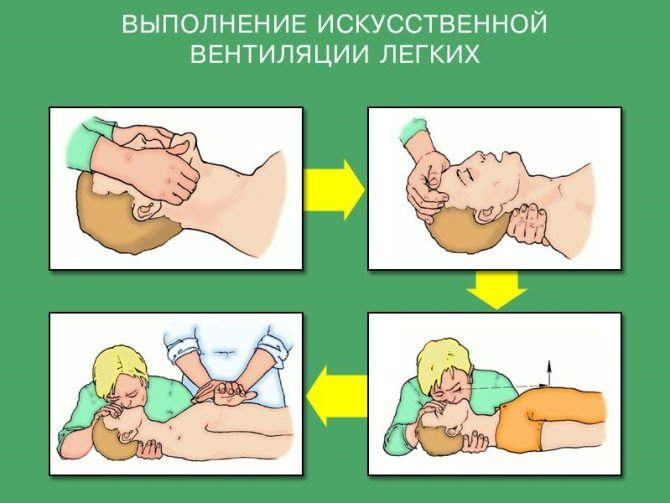 искусственное дыхание инепрямой массаж сердца