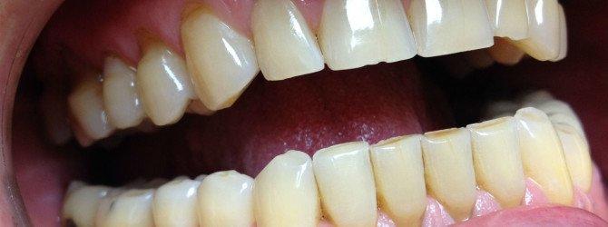 Клиновидный дефект зуба