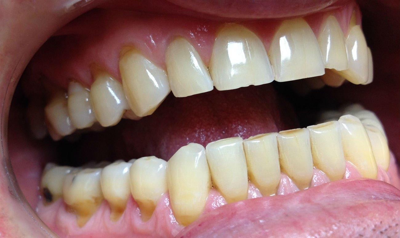 Современный подход к лечению клиновидных дефектов зубов.