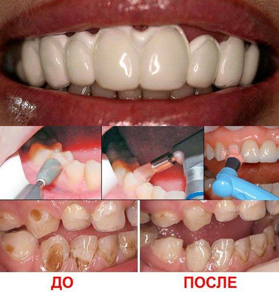 Процесслечения клиновидного дефекта зуба