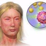 гиперемия и высыпания на коже
