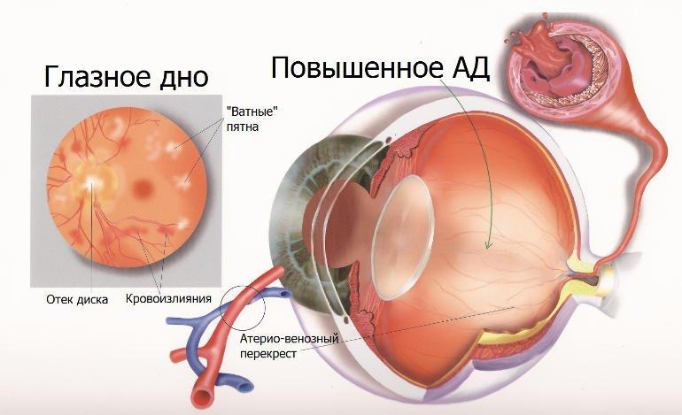 ангиопатия сетчатки по гипертоническому типу