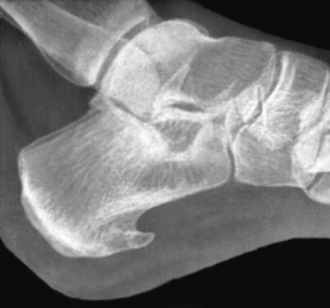 Рентгеновский снимок пятки