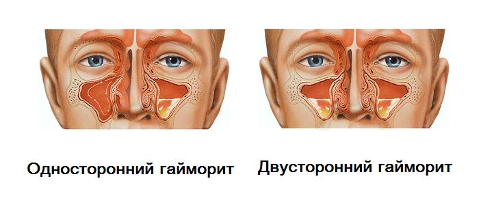 Гайморит из за больного зуба, зубной одонтогенный