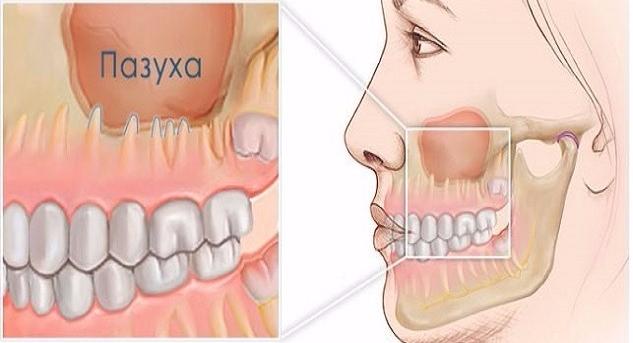 Воспаление корней зубов при гайморите