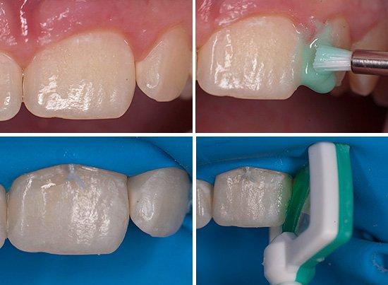 Метод щеглова для лечения зубов кариеса