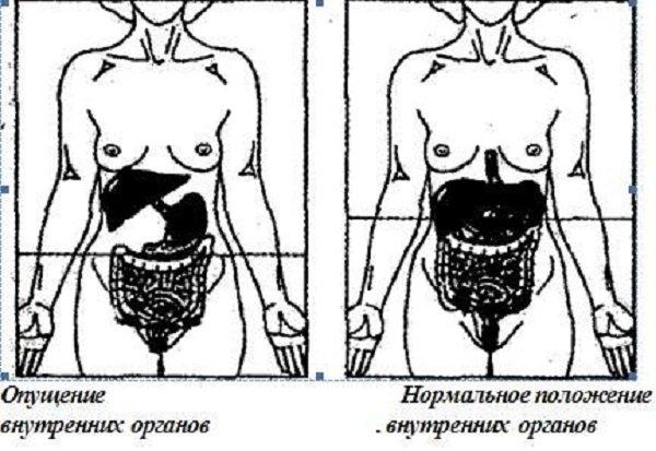 Опущение органов пищеварения